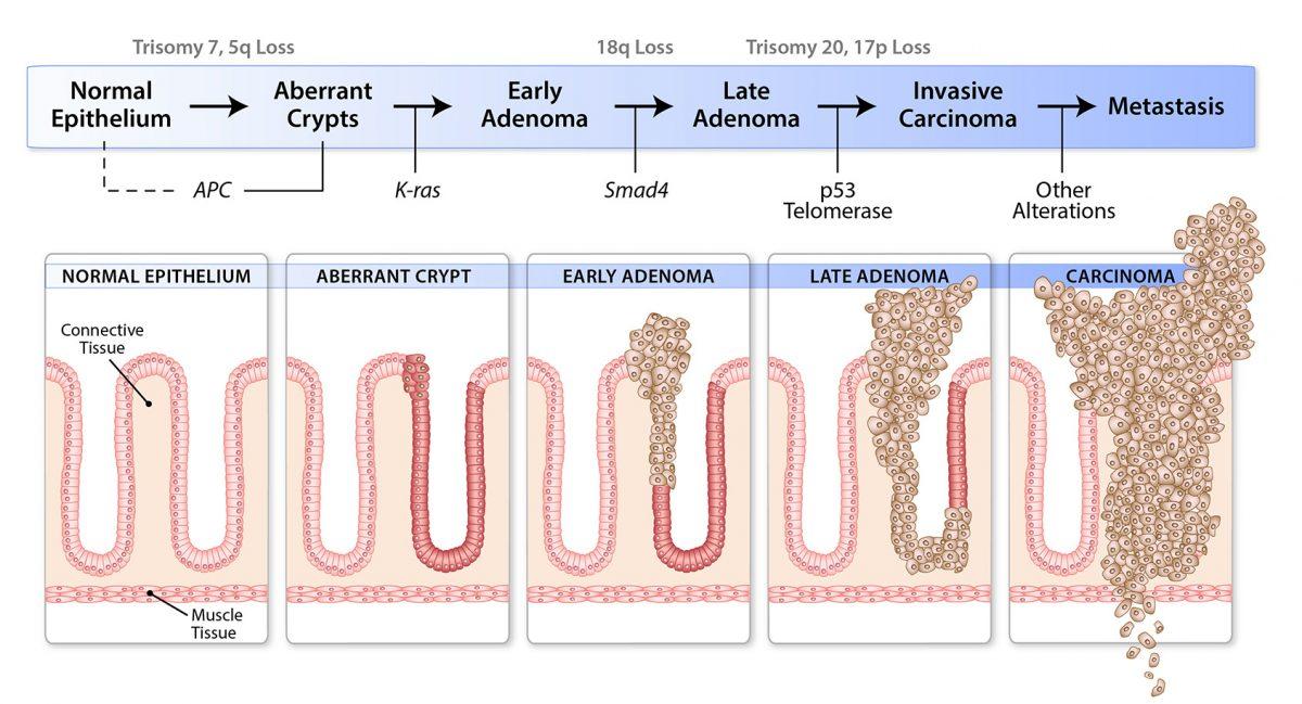 Telomerase and Adenomas