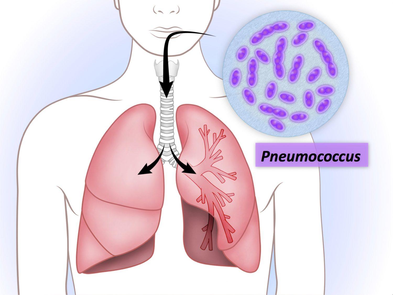 Pneumococcus -1