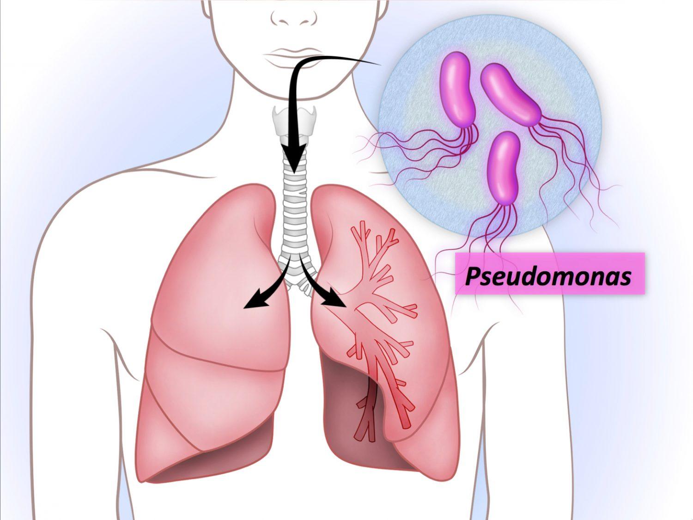 Pseudomonas -2